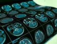 AVC : comment protéger un maximum de cellules cérébrales ?
