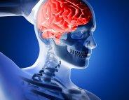 Dépendance à l'alcool : un faible courant électrique au niveau du crâne ?