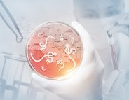 Ebola : l'appel à « l'accès libre et sécurisé » de l'OMS