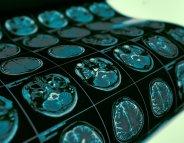 Epilepsie : le premier traitement, déterminant
