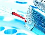Cancer du sein : test génétique, comment ça se passe ?