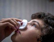 Idée reçue : faut-il pencher la tête en arrière quand on saigne du nez ?