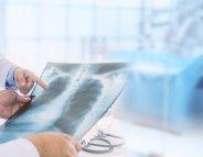 Radiologie : prescription requise pour les préparations coliques