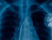 Implants médicaux: vers un scandale sanitaire d'ampleur ?