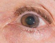Zoom sur la greffe de cornée