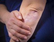 Le psoriasis augmente le risque de diabète de type 2