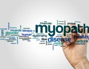 Dystrophie musculaire de Duchenne : une molécule redonne de la force ?