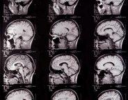 Quel rôle pour les cils dans notre cerveau?