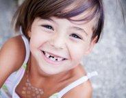 Perdre ses dents de lait, une étape naturelle