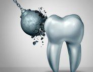 L'émail dentaire, armure de la dent