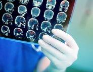 Traumatismes crâniens : éviter les complications