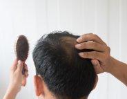 Chute de cheveux : traitement par finastéride à risque