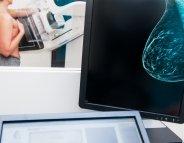 Mammographie : l'auto-compression moins douloureuse et tout aussi efficace