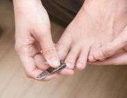 4 étapes pour soigner mon ongle incarné