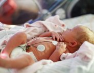 En néonat' : à quoi servent tous les fils et tuyaux autour de bébé ?