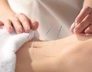[vidéo] Endométriose : l'acupuncture apaise la douleur