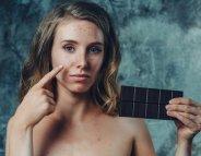 Sodas, sucreries, stress… ces facteurs qui aggravent l'acné