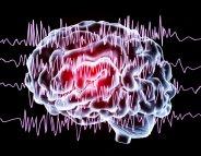 L'épilepsie à la loupe