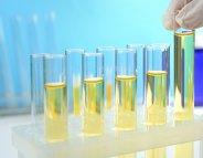 Un test urinaire pour prédire les cancers de la vessie ?