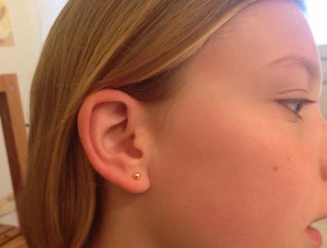 Mettre boucle d'oreille medicale