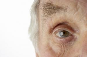 La DMLA touche en majorité les plus de 65 ans ©Phovoir