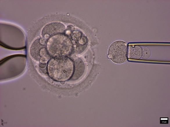 Une cellule est prélevée sur un embryon dans le cadre d'un DPI. ©CHU de Nantes