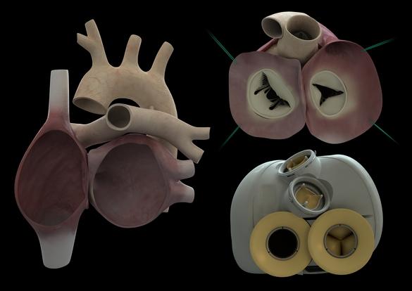 L'analyse de la première prothèse implantée durant 74 jours se poursuit. ©Carmat