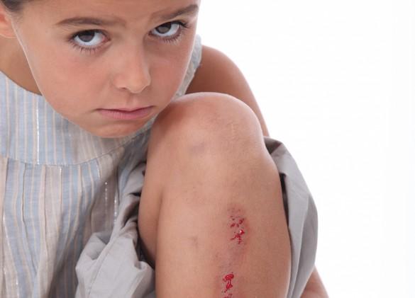 Une plaie doit parfois être refermée à l'aide de points de suture. ©Phovoir