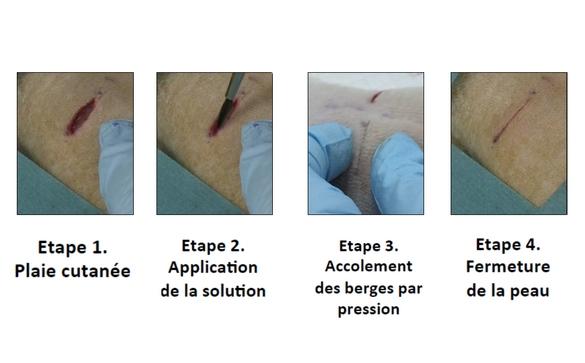 Réparation d'une plaie profonde par application de la solution aqueuse de nanoparticules. La fermeture de la plaie s'effectue en trente secondes. © laboratoire « Matière molle et chimie » (CNRS/ESPCI ParisTech)