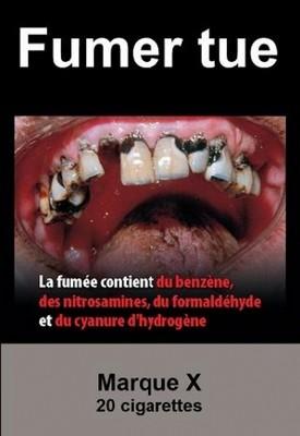 Sur les paquets de cigarettes neutres, des avertissements sanitaires remplacent totalement les images publicitaires. ©CNCT