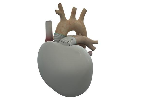 Ce cœur Carmat est relié à un dispositif de 3kg, porté par le patient. ©Carmat
