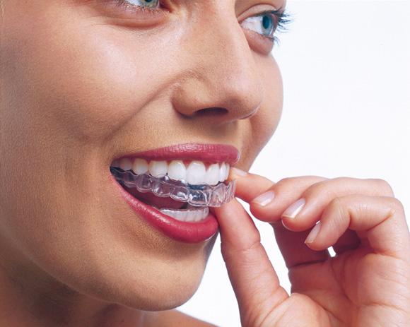 Près de la moitié des bénéficiaires d'un traitement d'orthodontie sont des adultes. ©Invisalign