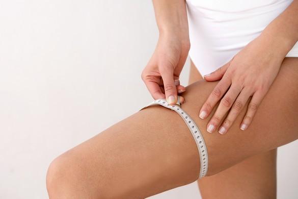 La cellulite touche uniquement les femmes, généralement dès l'adolescence. ©Phovoir