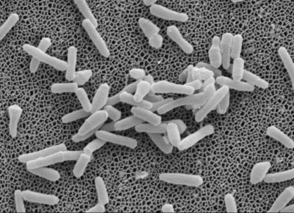Bacilles de la tuberculose en microscopie électronique à balayage. ©Jean-Pierre Tissier (INRA, Villeneuve d'Ascq) et Franco Menozzi (Institut Pasteur de Lille)
