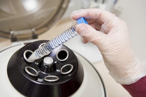 Après prélèvement et congélation, le greffon ovarien est ensuite réimplanté chez la patiente qui, guérie de son cancer, émet le souhait d'une grossesse. ©Phovoir