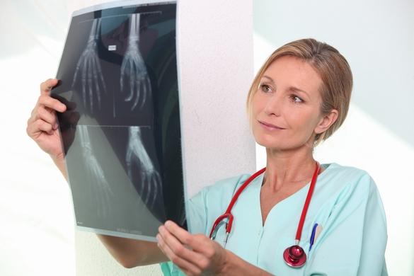 La fracture du poignet chez une femme de plus de 50 ans doit faire suspecter une ostéoporose. ©Phovoir