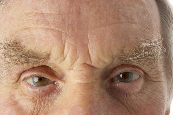 Des Français sont sur une piste pour ralentir la progression d'une protéine en cause dans la maladie de Parkinson. ©Phovoir