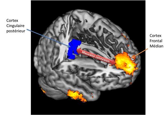 Représentation 3D du cerveau et des zones impliquées (en bleu le cortex cingulaire postérieur, en jaune le cortex frontal médian) © Unité Inserm 825