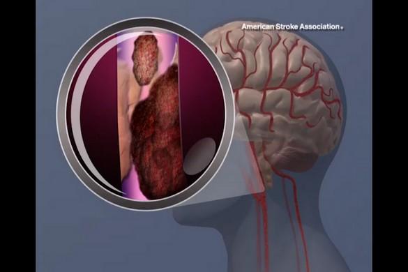 La formation d'un caillot de sang qui obstrue la carotide… ©American Heart Association