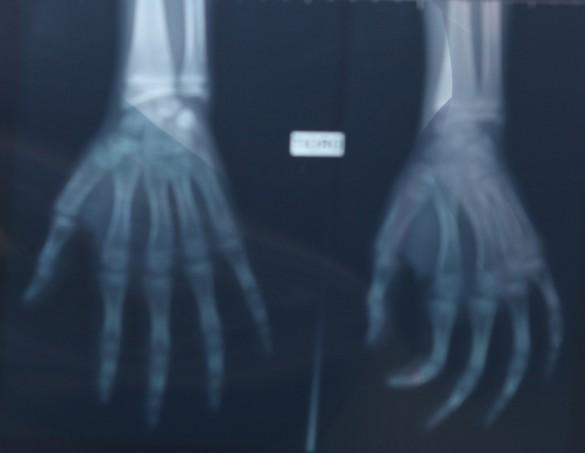Une radiographie de la main et du poignet est réalisée dans le cadre des examens médicaux d'évaluation de l'âge de certains mineurs isolés étrangers. ©Phovoir