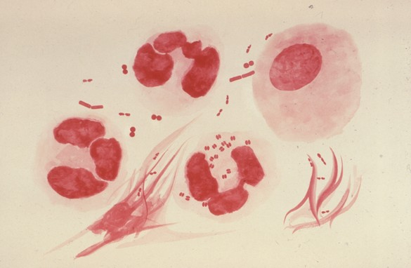 Neisseria gonorrhoeae. ©CDC/ Dr Norman Jacobs