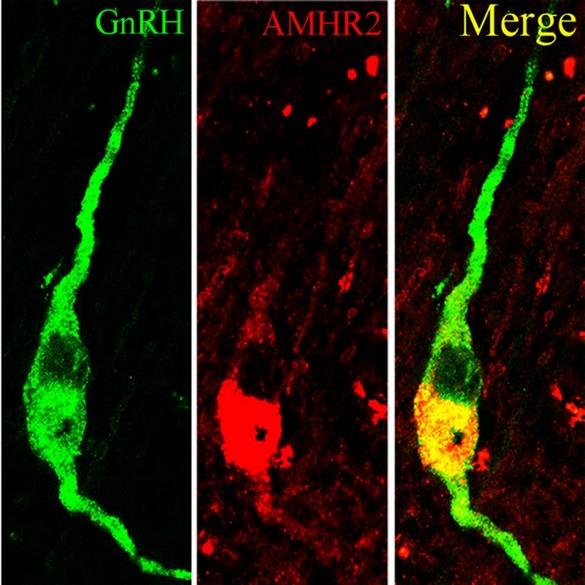 Coupe d'hypothalamus humain immunomarqué pour la GnRH (vert) et l'AMHR2 (rouge). ©Cimino et coll. Nature Communication (2016)