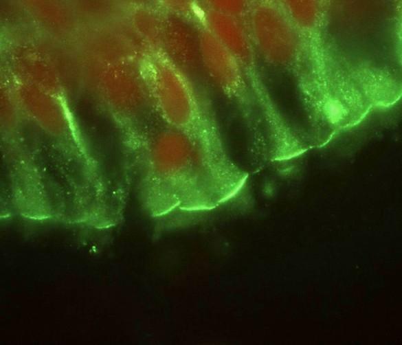 Mucoviscidose : Immunofluorescence sur coupe de bronche humaine normale. Marquage en rouge des noyaux cellulaires, en vert de la protéine CFTR (Cystic fibrosis transmembrane conductance regulator) impliquée dans la mucoviscidose. ©INSERM, P.Trouvé