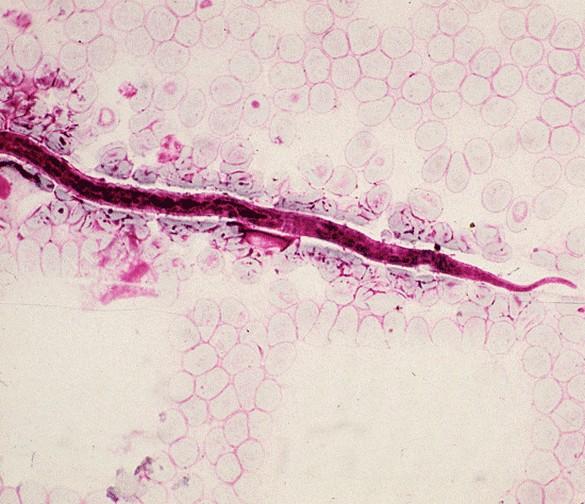 Larve de Loa loa, le parasite responsable de la loase, dans le sang. ©IRD/C. Bellec