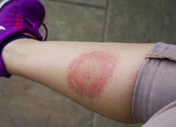 La maladie de Lyme se manifeste souvent par une auréole rouge autour de la piqûre de tique. AnastasiaKopa/shutterstock.com