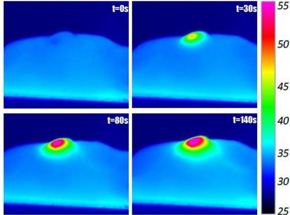 Images infrarouges d'une souris anesthésiée lorsque sa tumeur, injectée de nanotubes, est exposée à un laser. L'échelle de droite représente la température en surface. ©Iris Marangon