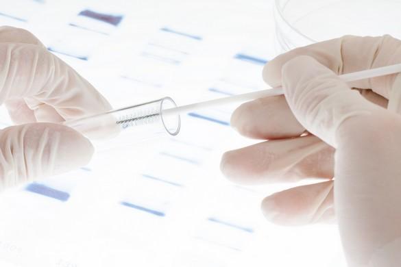 Cancer de sein : des tests génétiques pour qui ?