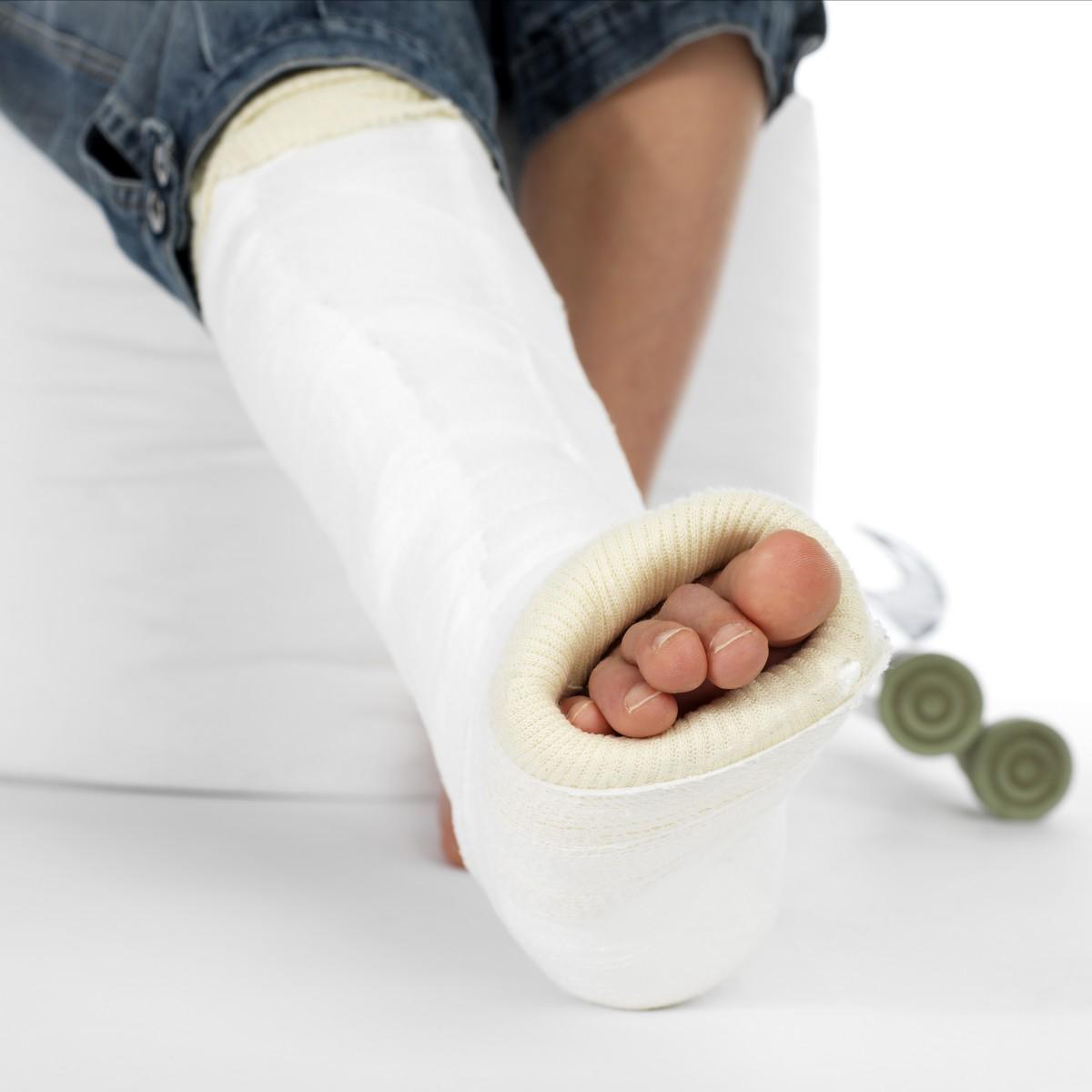 meilleur endroit pour chaussures décontractées prix de détail Trois semaines de plâtre suffisantes pour soigner une ...