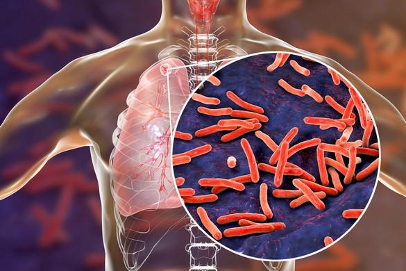326b80f838b8f1 Une prédisposition génétique à l origine de la tuberculose   - A la ...